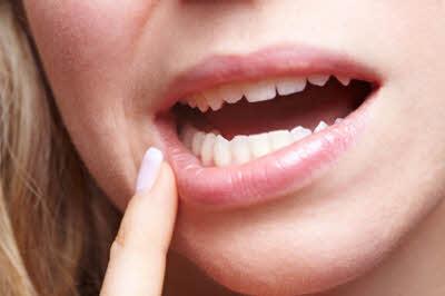 Frau mit Schmerzen am Zahnfleisch