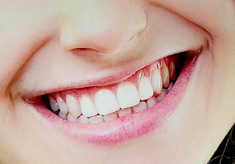 Zahnfleisch Schmerzen