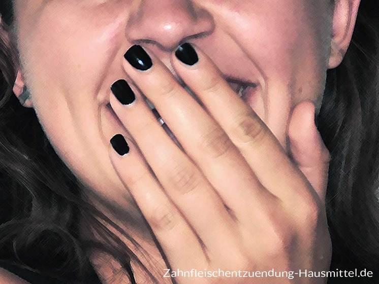 Zahnfleischentzündung Gingivitis Parodontitis